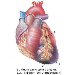 Инфаркт миокарда у женщин
