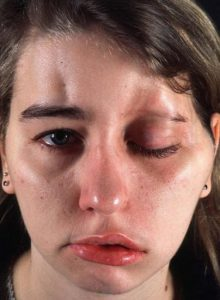 осложнения после инъекций ботокса