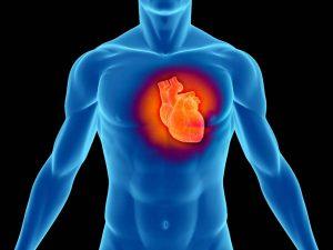 Мелкоочаговый инфаркт