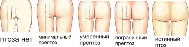 классификация птоза