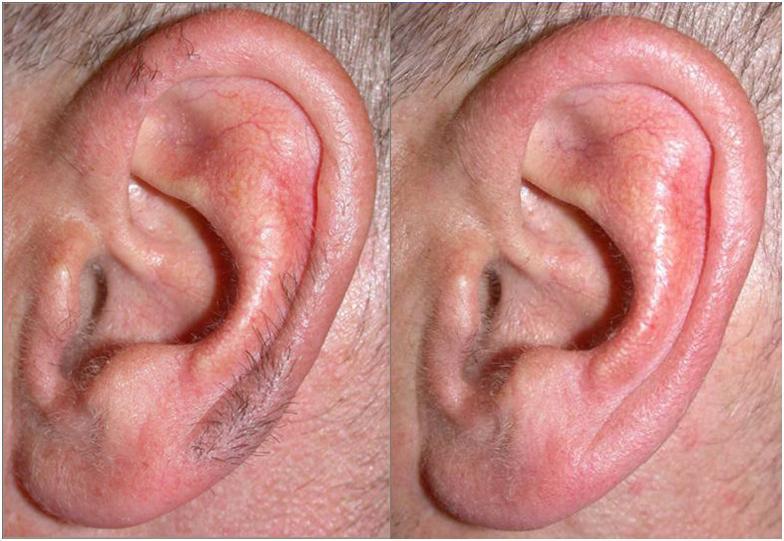 до и после удаления волос в ушах