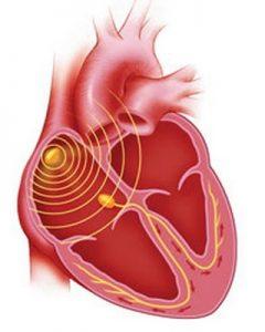 Развитие аритмии сердца