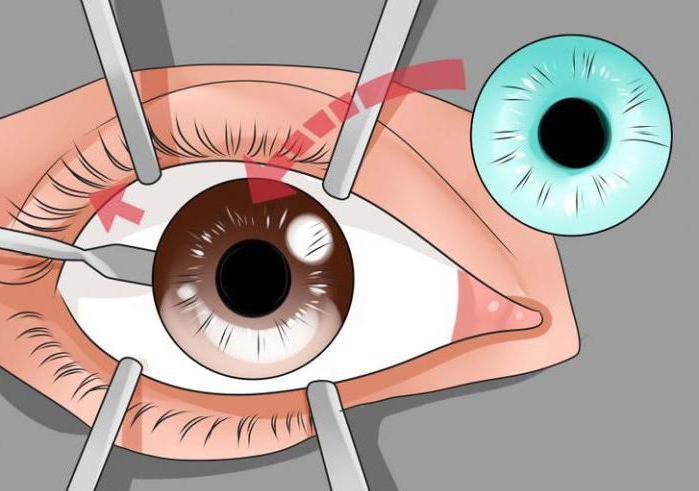 имплант для изменения цвета глаз