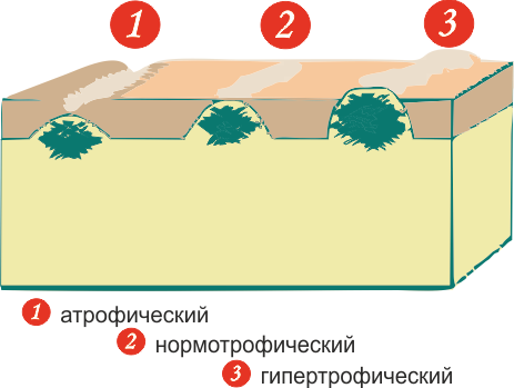 Лонгидаза от рубцов