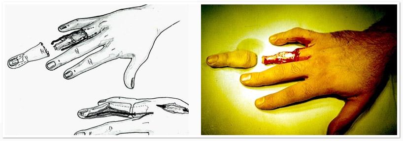 хирургия пальцев кисти