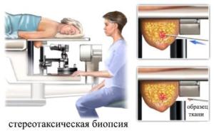 изображение процедуры