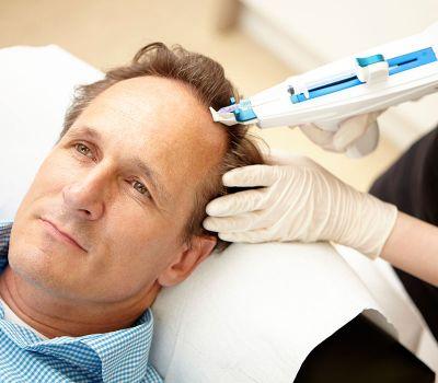 методика выполнения мезотерапии волос