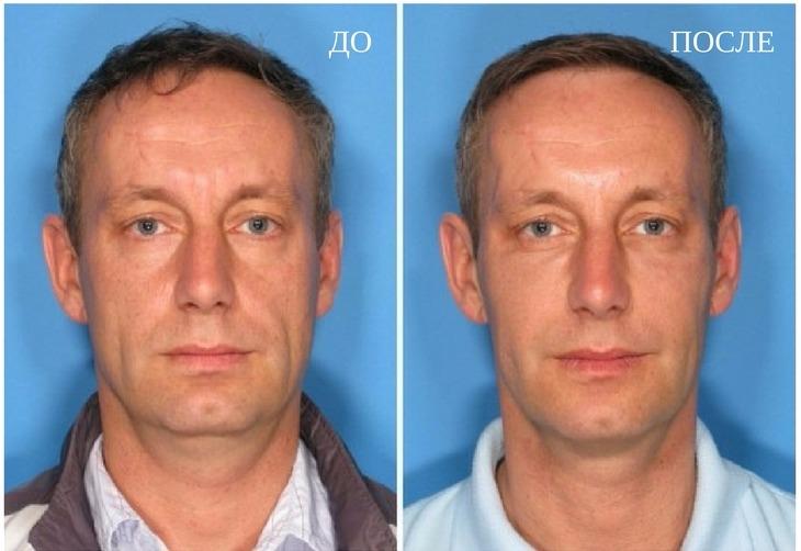 результат мезотерапии у мужчины