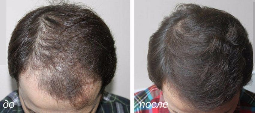 трансплантация длинных волос