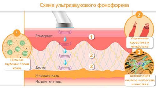 схема ультразвукового фонофареза