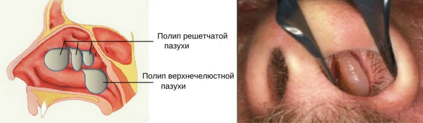 полип носовой полости