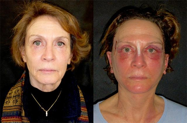 осложнения хирургической подтяжки лица