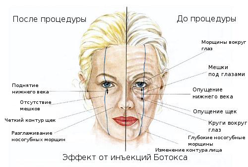 эффекты ботокса