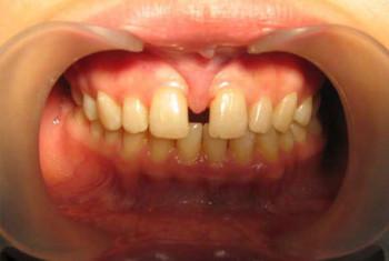 показание к пластики верхней губы: диастема