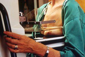 рентген диагностика молочной железы