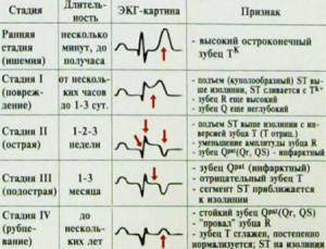 Стадии инфаркта миокарда на ЭКГ