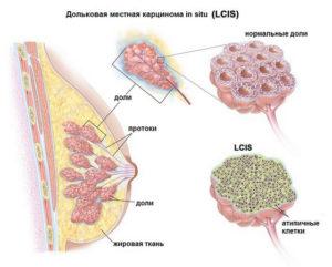 Злокачественное образование в груди