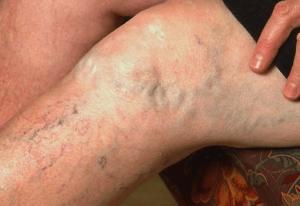 лазерное устранение варикоза
