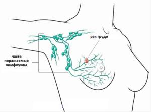 Лимфатическая система груди