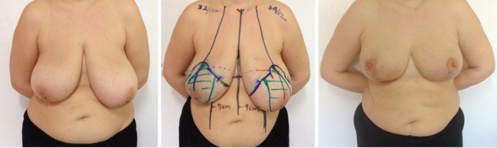 результат от операции на груди