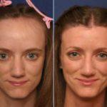 методы коррекции линии роста волос