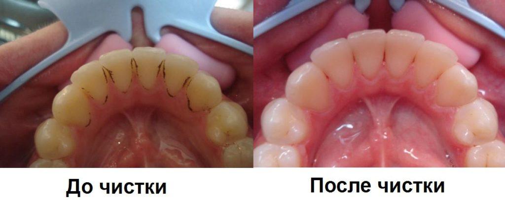до и после чистки зубов методом «Аir flow»