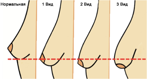 виды тубулярной груди