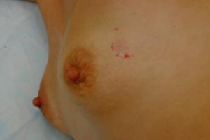 Красные пятнышки на молочной железе