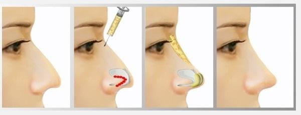 исправление горбинки носа филлерами