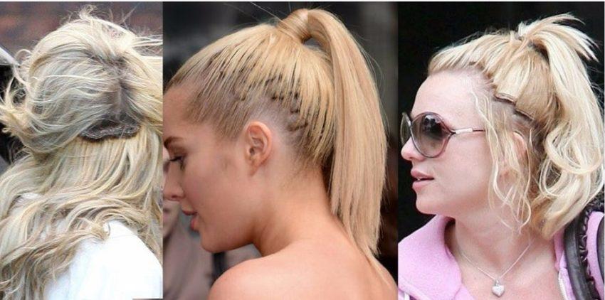 побочные эффекты наращивания волос