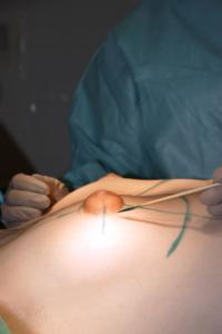 операция по коррекции