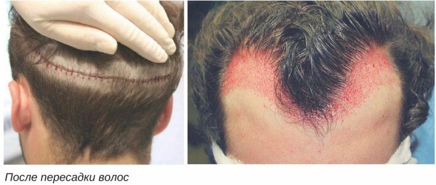 осложнения при пересадке волос