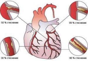 Основные виды стенокардии