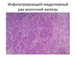инфильтрующий тип заболевания