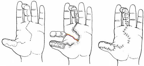 хирургия пальца кисти