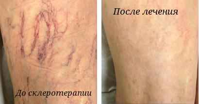 результат от лечения