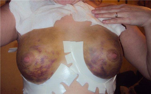 осложнения после липофилинга