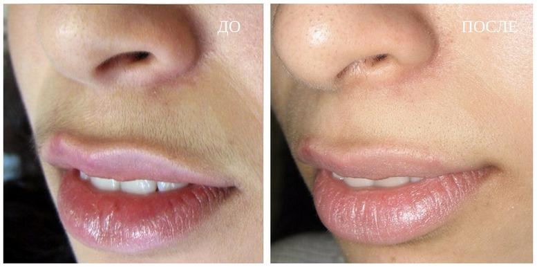 результат от фотоэпиляции верхней губы