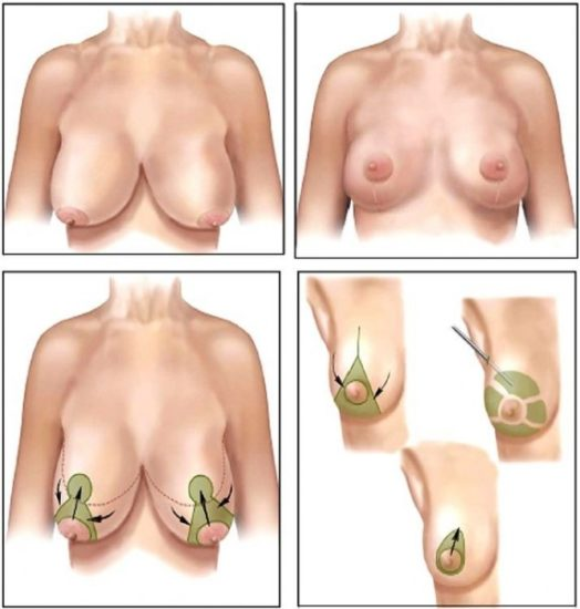 коррекция формы грди