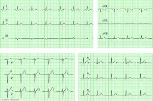 Нормальный ритм сердца на ЭКГ