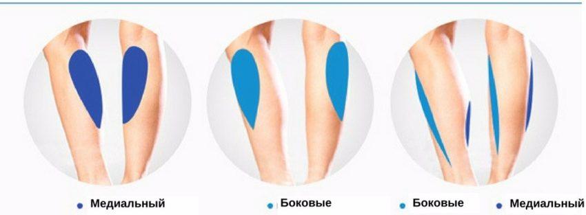 места установки имплантов при круропластике