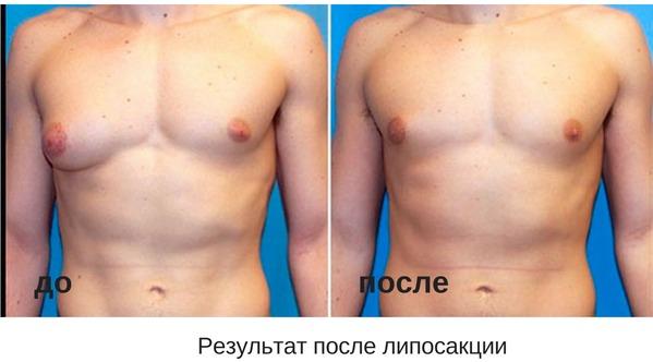 до и после липосакции при гинекомастии