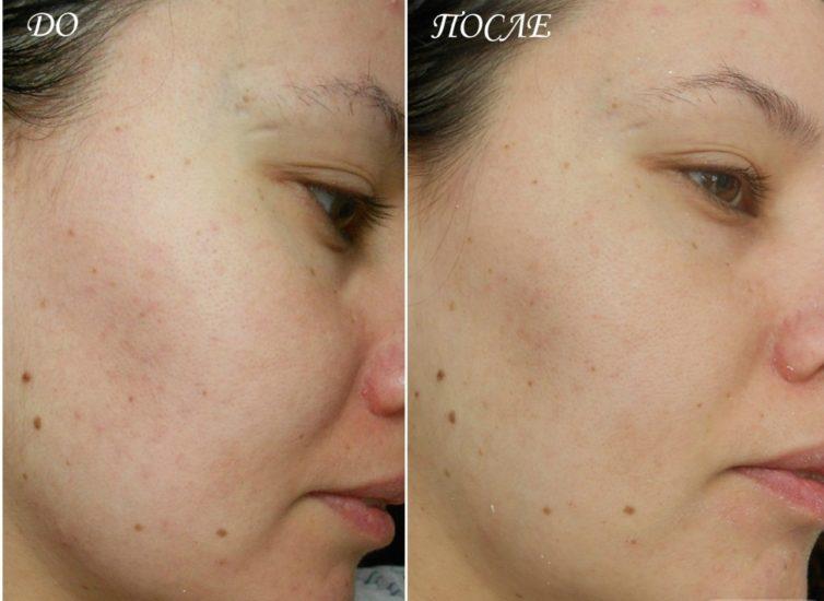 результат применения альгинатных масок