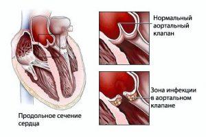 Заболевание ревмокардит