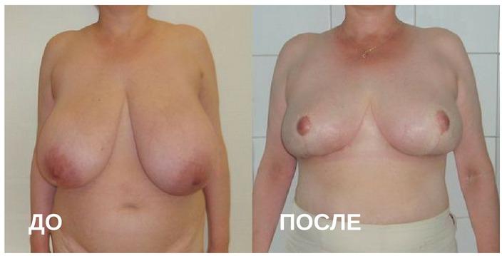 до и после операции по исправлению птоза молочной железы