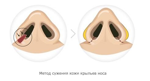 метод операции по уменьшению ноздрей