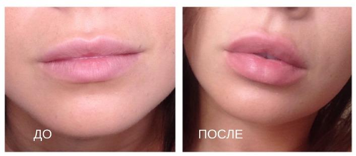 вакуумное увеличение губ до и после