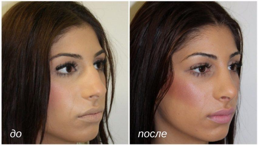до и после ринопластики носа с горбинкой