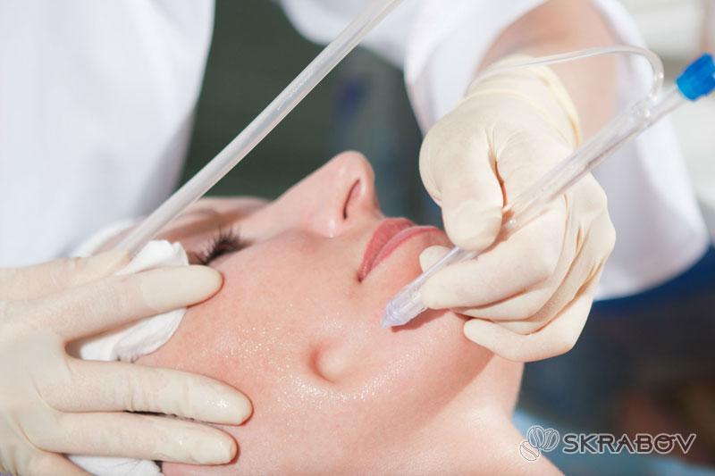 Как выдавить черные точки на носу: пошаговая инструкция 7-5