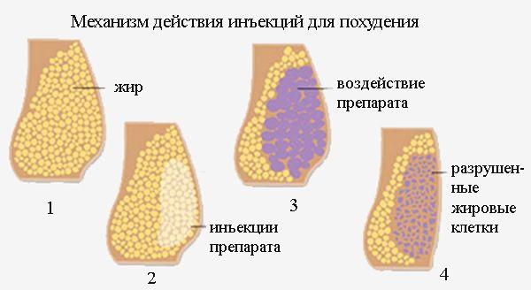 мезотерапия липолитиками